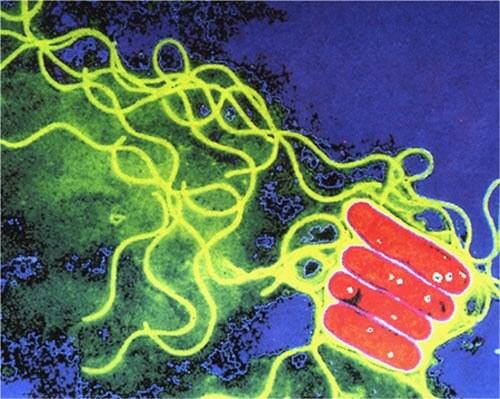 Batterio Legionella